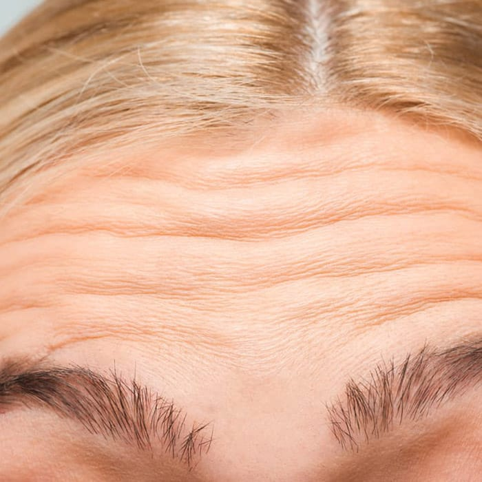 forehead lines new