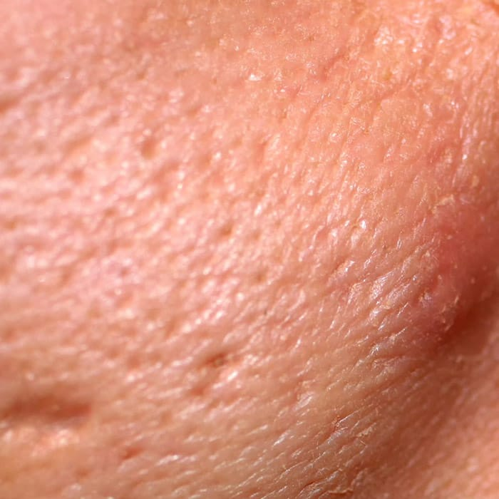 large pores new