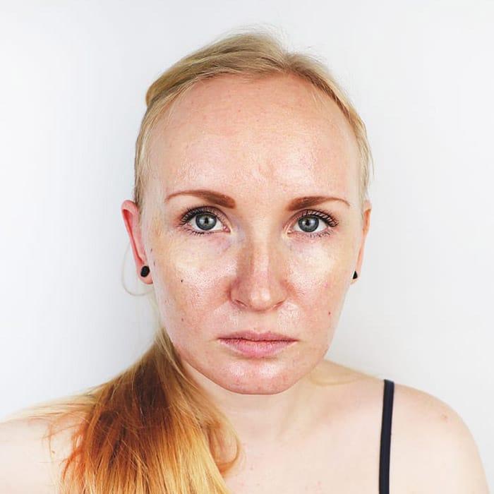 oily skin condition