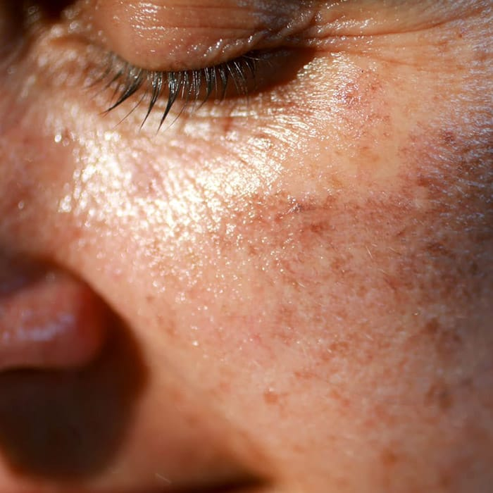 solar skin new
