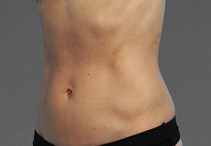 CoolTone-Abdomen-Dr-Moradi-01VBF-After