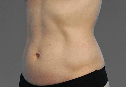 CoolTone-Abdomen-Dr-Moradi-01VBF-Before