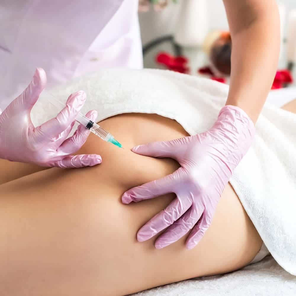 Treatment for Cellulite