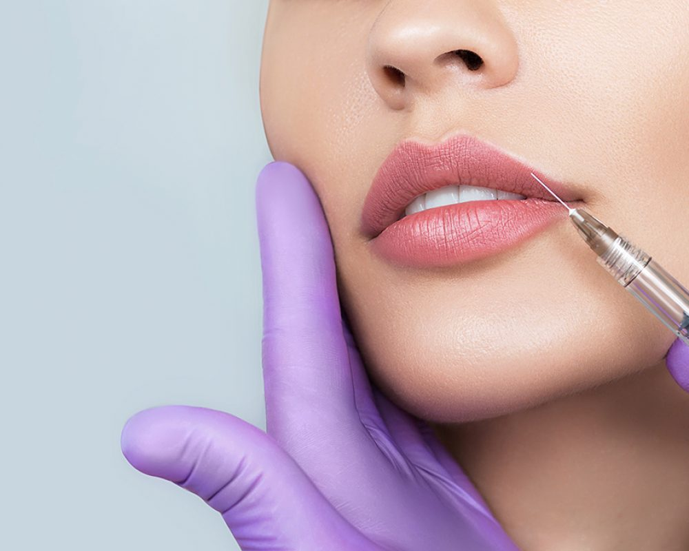 Cropped sensual female lips, procedure lip augmentation. Syringe near womans mouth, injections for increase lips shape